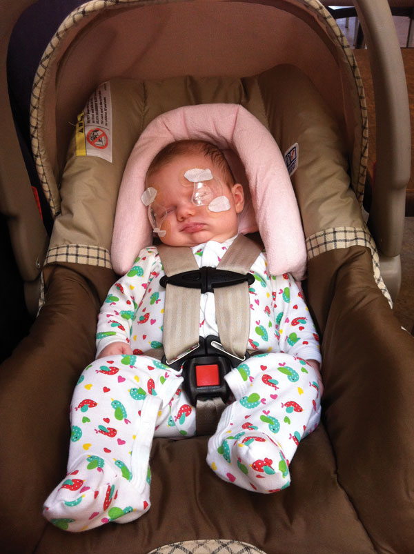 A baby with medical bandages on her face